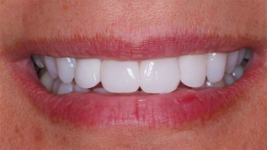 Cosmetic Smile Makeover After - Case 1