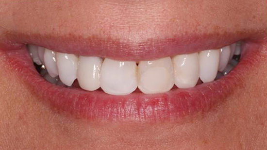 Cosmetic Smile Makeover Before - Case 1
