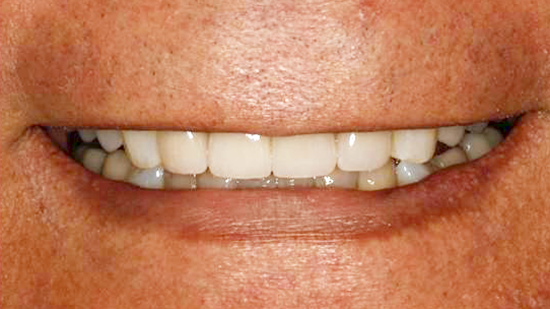 Cosmetic Smile Makeover After - Case 2