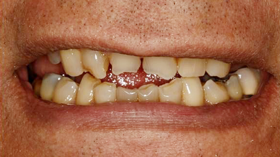 Cosmetic Smile Makeover Before - Case 2