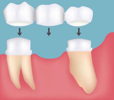 Dental Bridges Vacaville CA