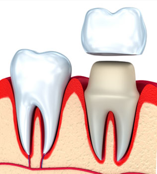 Dental Crowns Vacaville CA