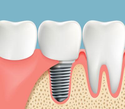 Dental Implants Vacaville CA