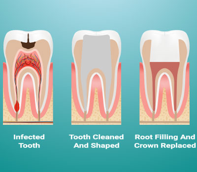 Root Canals Vacaville CA